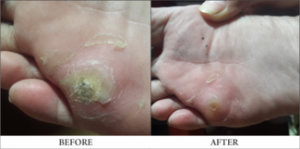 Wart Removal Homeopathy Treatment