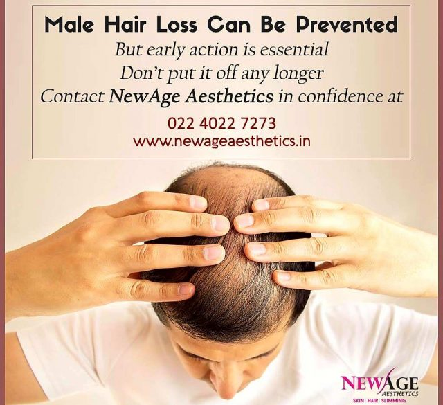 Partial male pattern baldness Hair loss hair fall skin hair homeopathy de-addiction clinic andheri