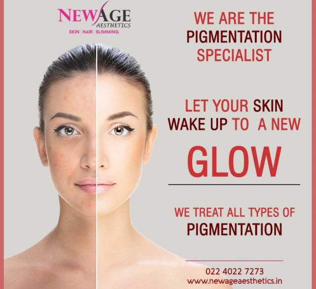 Pigmentation skin lightening treatments andheri