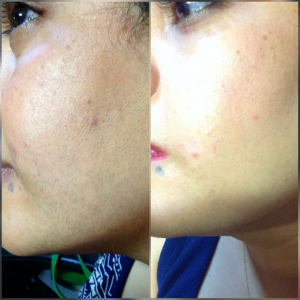 Permanent facial laser hair reduction