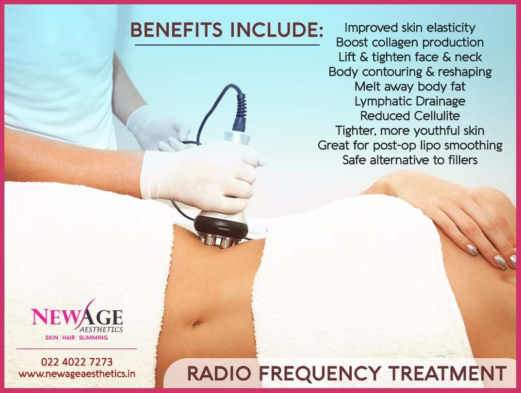 Radiofrequency body shaping